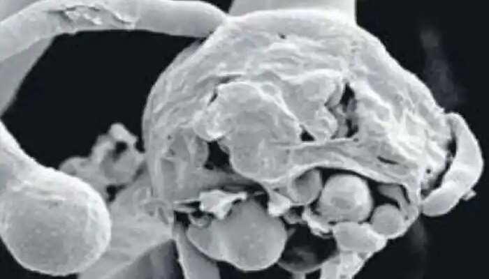 White Fungus UPSC | Causes | Symptoms | Spread | Treatment
